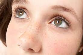 色素斑治療