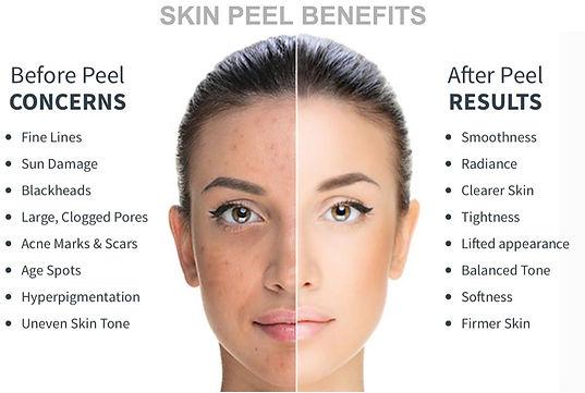 Peel-Results.jpg