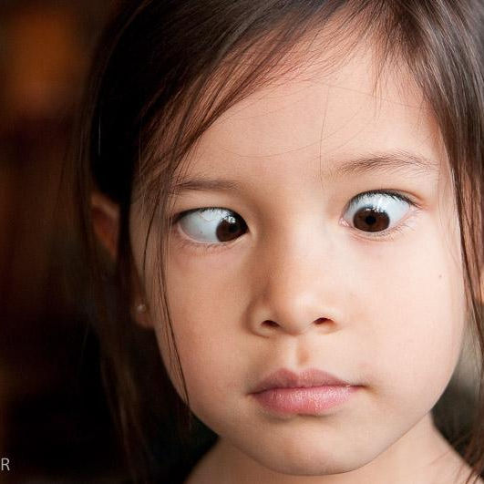Binocular Vision Exam
