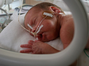 Big data analytics  protecting lives of premature babies