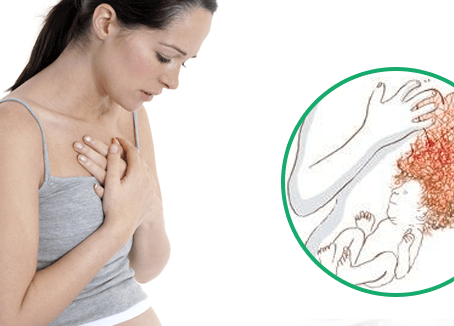 How to Relieve Heartburn in Pregnancy