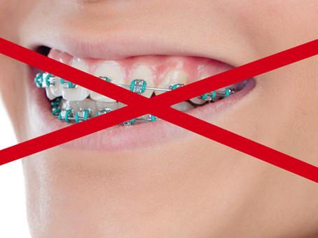 Denti disallineati nell'adulto.