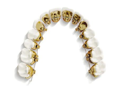 Denti storti nell'adulto?