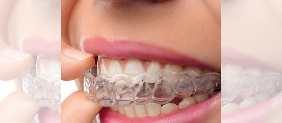 """Denti storti, attenzione agli apparecchi """"fai da te"""""""