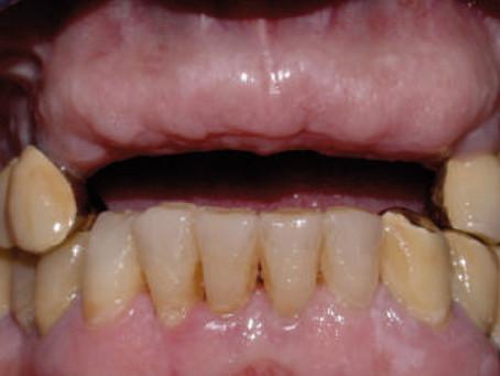 Nuove tecnologie in implantologia orale per restituire il sorriso.