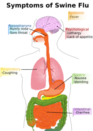 symptoms causes and treatment for swine flu h1n1 virus