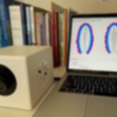 Bioeletrografia digital – Biowell – GVD