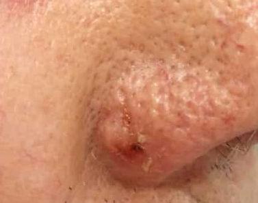 Hautkrebs, Basalzellkarzinom, Hautarzt