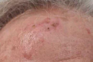 Hautkrebs, weisser Hautkrebs, schwarzer Hautkrebs, Hautarzt