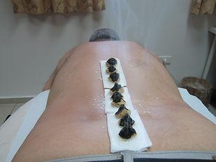 מוקסה | אלטרנטיבי - רפואה סינית, דיקור סיני, מסאגים