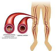 Oclusão arterial crônica da circulação das pernas