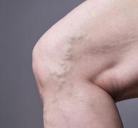 Varizes vascular