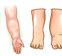 Inchaço, edema, aumentoda perna, retenção de liquidos