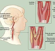 Entupimento da ciruculação, derrame, AVC, paralisia, fala enrolada, desvio da boca