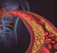 Entupimento da circulação, placa de gordura