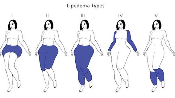 lipedema_tipos-1200x675-cropped.jpg