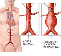 Dilatação da aorta. Aneurisma. Dor abdominal