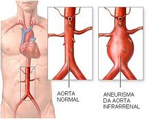 aneurisma_de_aorta.png