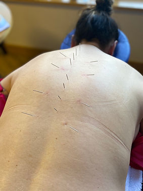 medial acupuncture