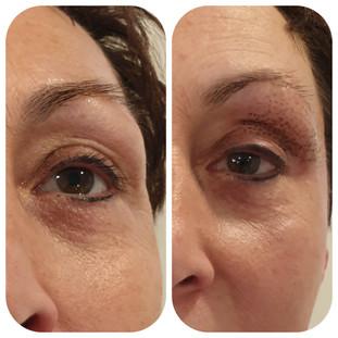 Onmiddellijk na plasma behandeling ooglidcorrectie