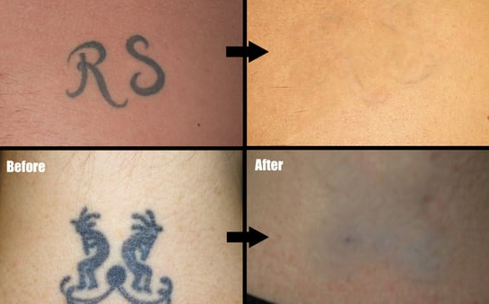 yag laser tattoo removal
