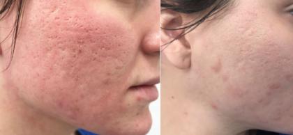 Yag laser acne