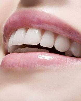 cosmetic-dentistry-1024x683.jpg