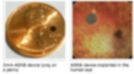 Website Eye implant 2.JPG