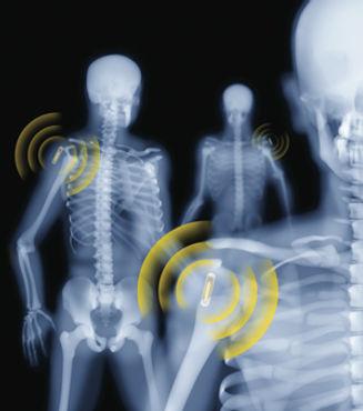Website RFID Chip shoulder.jpg