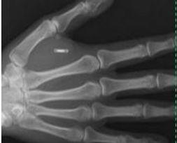 Website Implant in Hand.JPG
