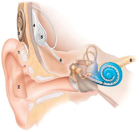 Website Cochlear Implant 2.jpg