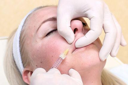 aumento labios hialuronico. consultori azon-torres