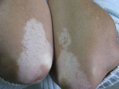 vitiligo codos. Consultori azon-torres