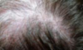 Alopecia androgenica.Consultori Azon-Torres