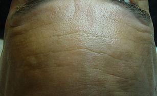 Botox frente despues. Consultori Azon-Torres