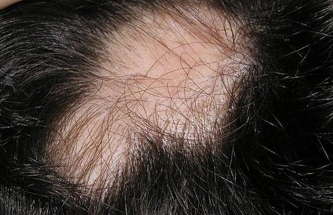 alopecia androgenica. Consultori azon-torres