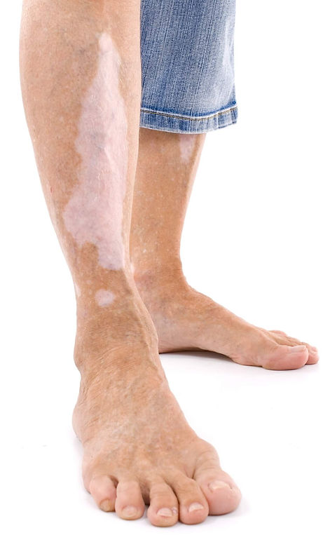 vitiligo piernas. Consultori azon-torres