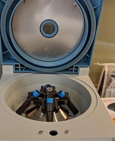 PRP centrifugacion. Consultori Azon-Torres