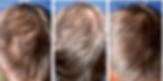 Alopecia plasma rico plaquetas. Consultori Azon-Torres