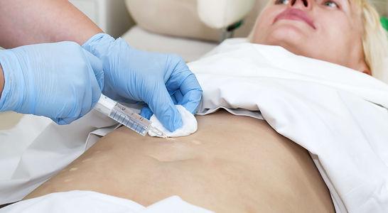 mesoterapia celulitis. Consultori azon-torres