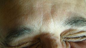Botox entrecjo antes.Consultori Azon-Torres
