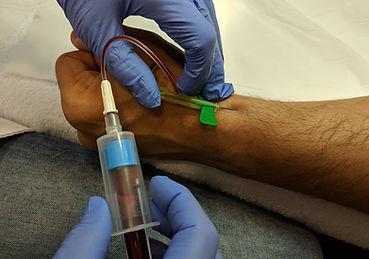 PRP extraccion sangre.Consultori Azon-Torres