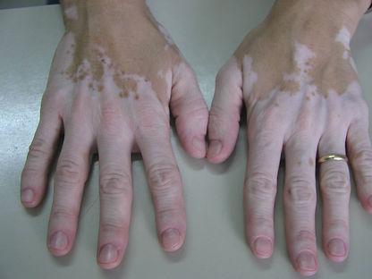 vitiligo manos. Consultori azon-torres