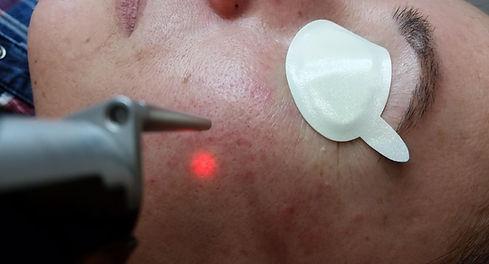 laser facial. Consultori Azon-Torres