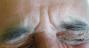 Botox entrecejo despues. Consultori Azon-Torres