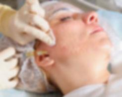 mesoterapia facial.Consultori azo-torres