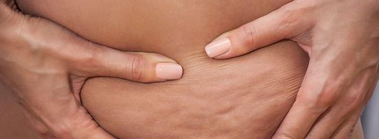 Celulitis y mesoterapia. Consultori Azon-Torres
