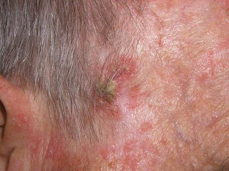 pre-cancer de piel. Conultori Azon-Torres