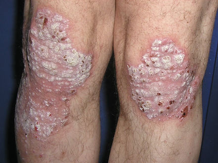psoriasis rodillas. Consultori azon-torres