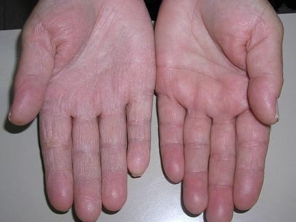 dermatitis manos. Consultro